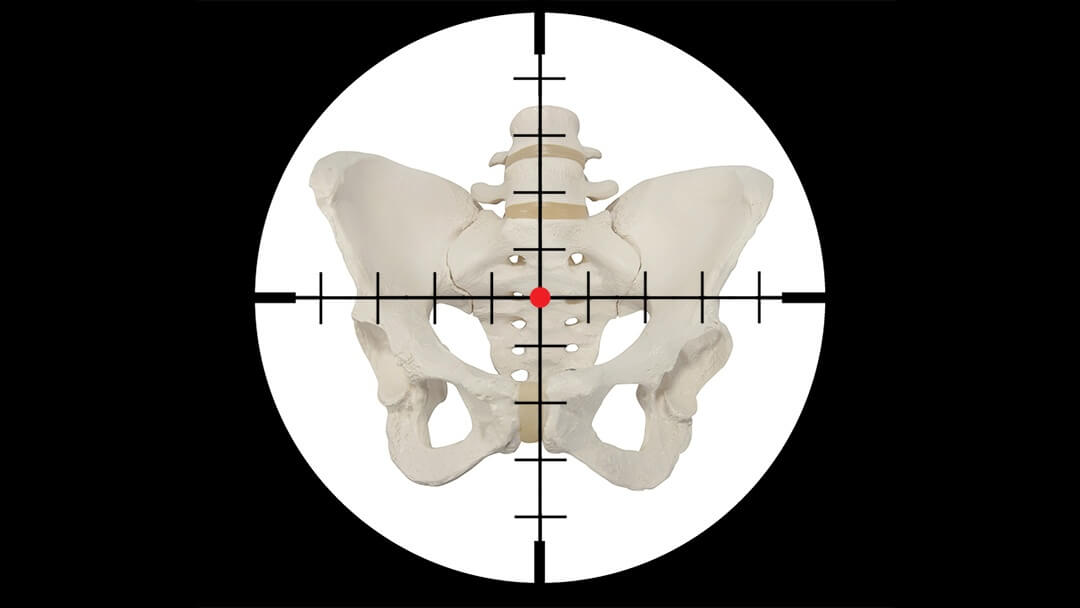 Pelvis in crosshairs